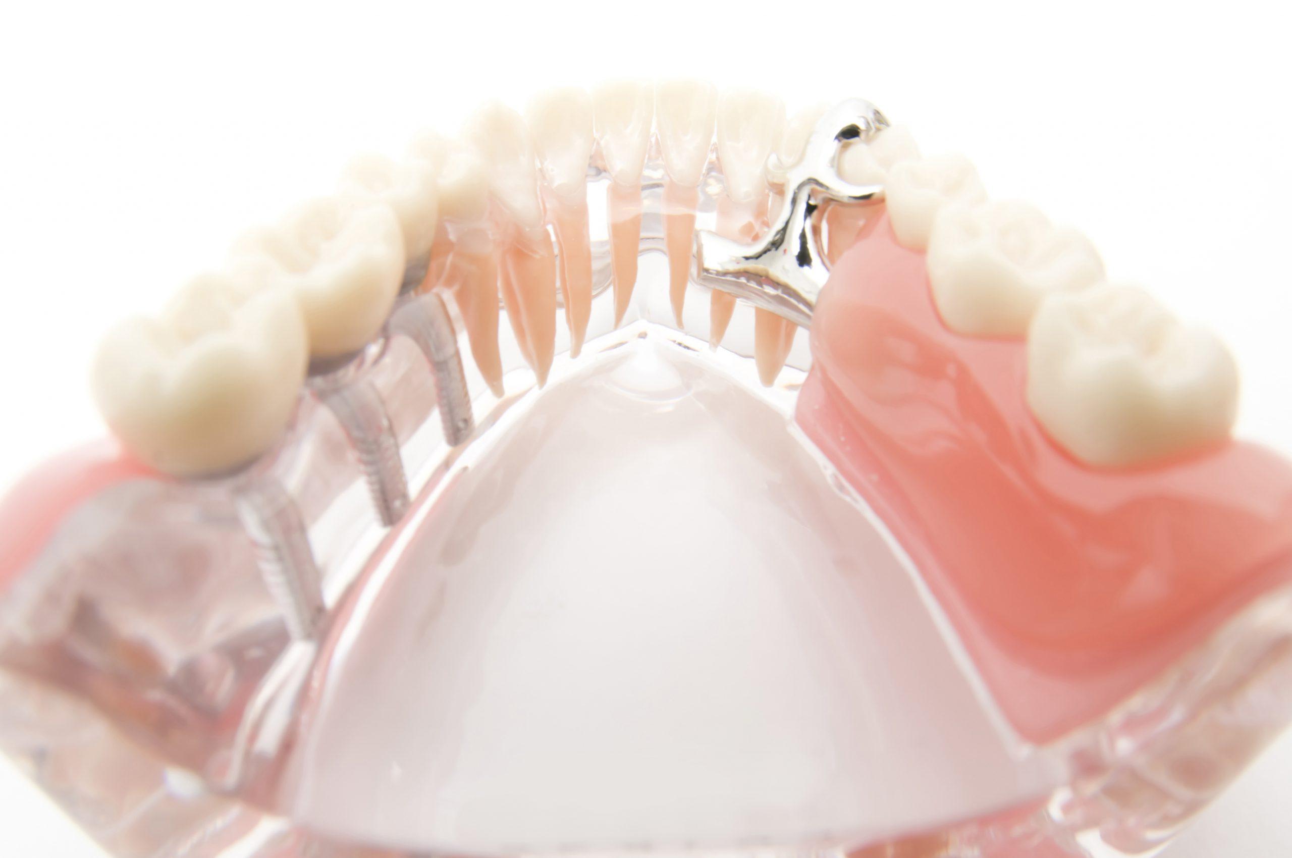 歯を失った方へ:歯を失ったらすぐに対処が必要です