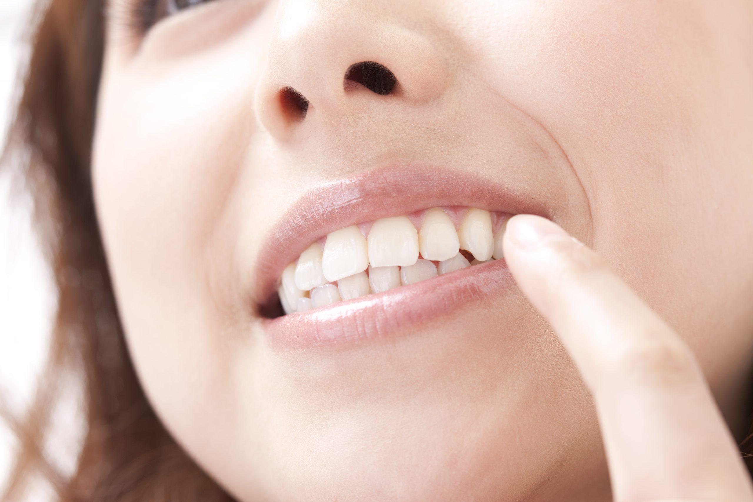 矯正治療:見た目だけでなく歯並びは健康にも影響します